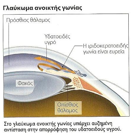 f345784603 Γλαύκωμα - Οφθαλμολογικές Παθήσεις